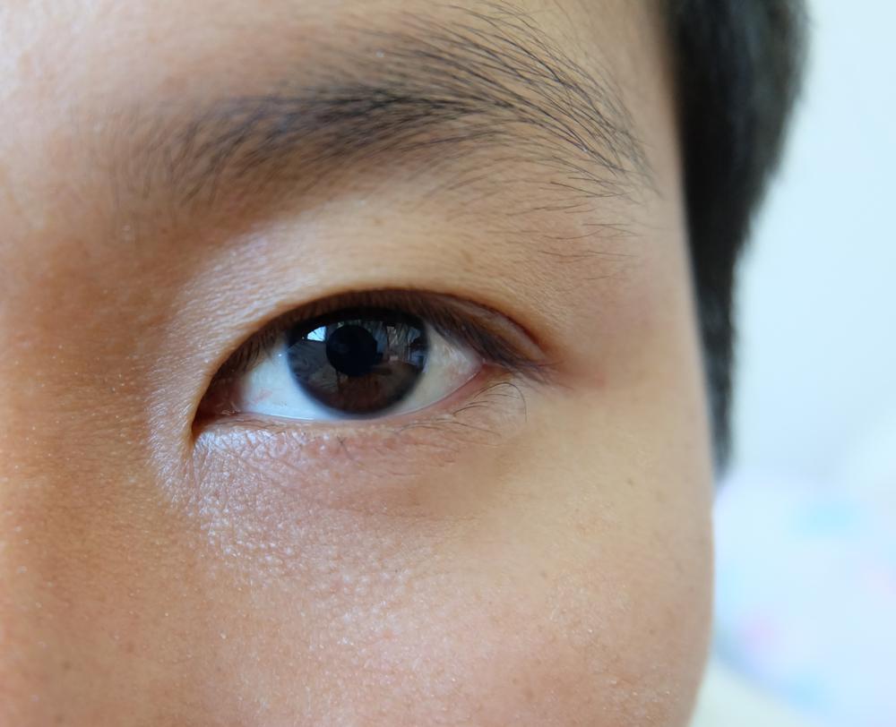 目・上瞼の窪み整形をする際に気を付ける10項目