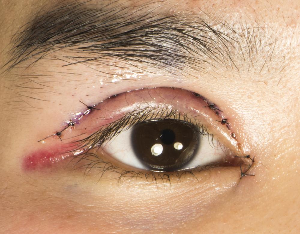 【口コミ・体験談】全切開でダウンタイム中の腫れが・・。