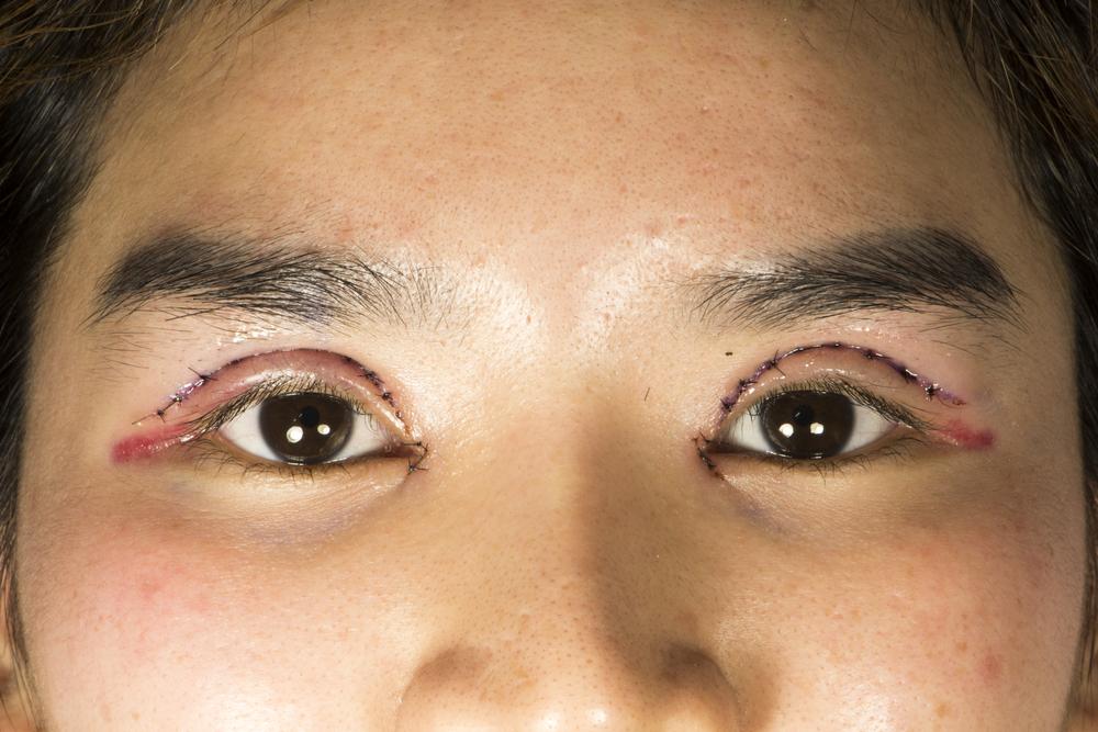 【口コミ・体験談】小切開はまぶたの腫れと赤みがダウンタイム中すごかった。 (2)