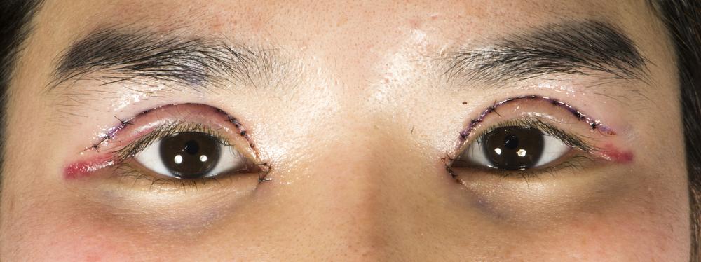 【口コミ・体験談】加齢やコンタクトレンズが原因で眼瞼下垂になり、挙筋短縮法を行いました。
