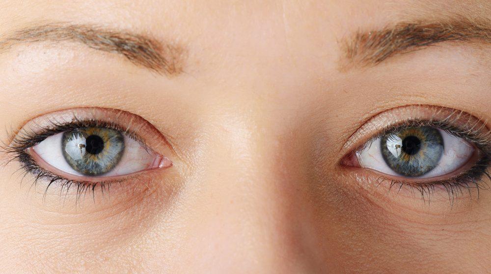 上目瞼凹み修正の効果と失敗・修正を徹底調査!