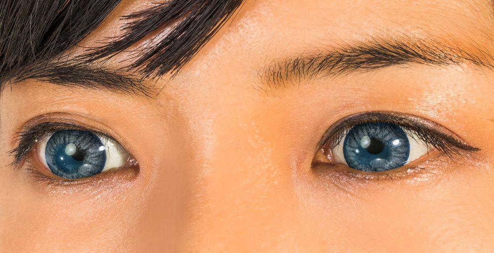 下眼瞼切開法(下まぶたのたるみ)の効果と失敗・修正を徹底調査!