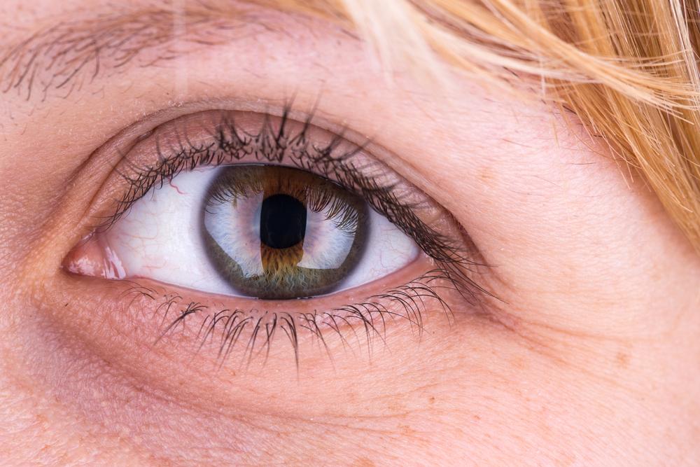 眼瞼下垂(筋膜移植術)の効果と失敗・修正を徹底調査!