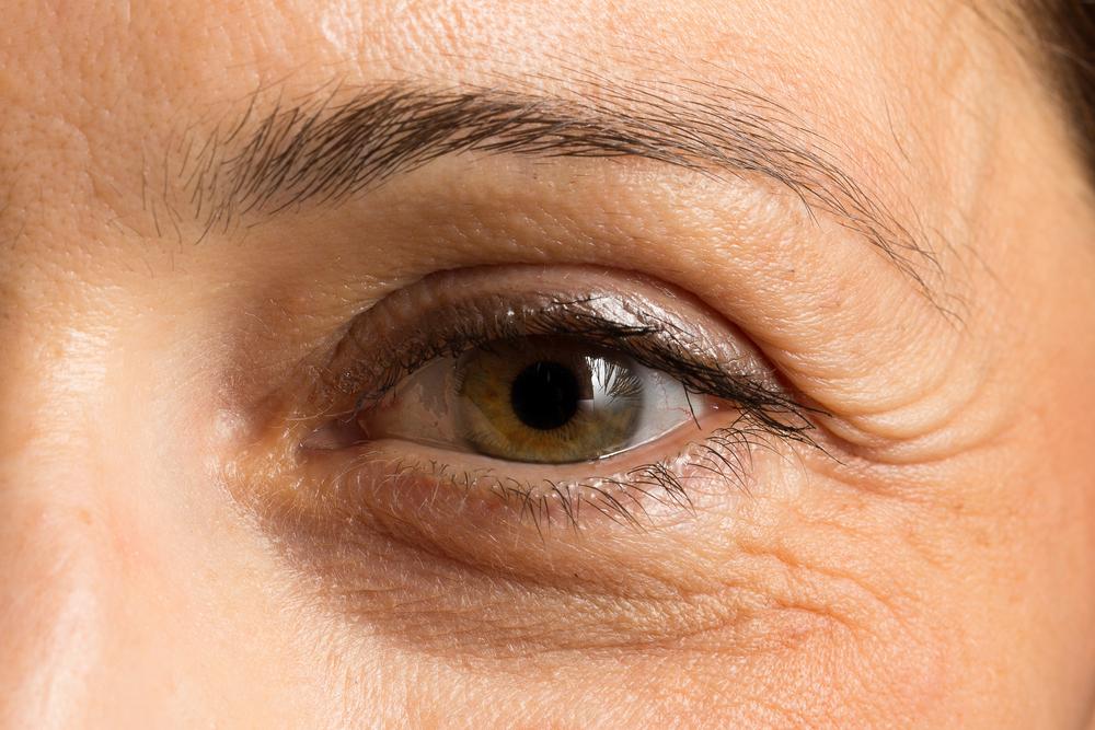 眼瞼下垂(挙筋腱膜前転法)の効果と失敗・修正を徹底調査!