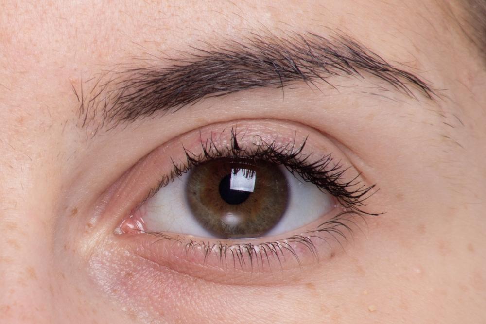 眼瞼下垂(挙筋短縮法)の効果と失敗・修正を徹底調査!