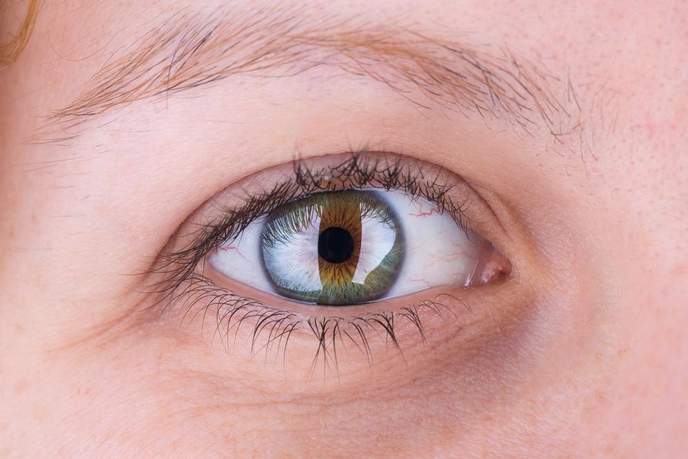 下眼瞼拡大術(たれ目形成)の効果と失敗・修正を徹底調査!