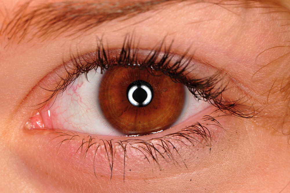 眼瞼下垂(腱膜前転法)の失敗とは?